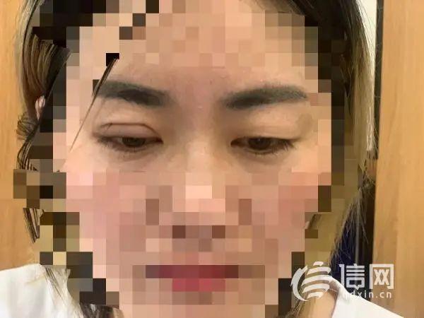 """""""打板""""学员双眼皮效果 (来源:信网)"""